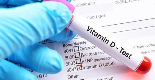 آزمایش با کیت ویتامین دی