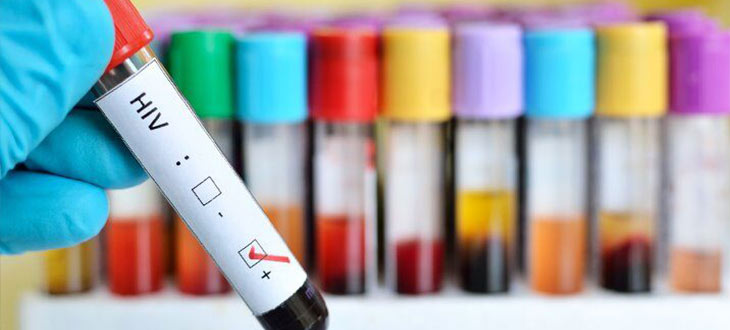 آزمایش ایدز | آزمایش hiv