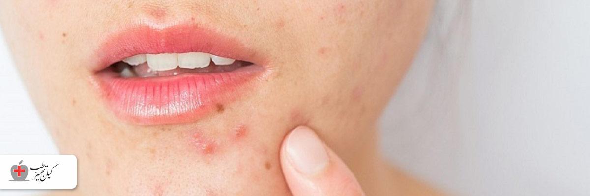 عسل برای پوست و درمان جوش